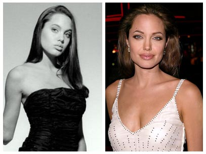 Angelina Jolie Plastic Surgery Before After Pictures