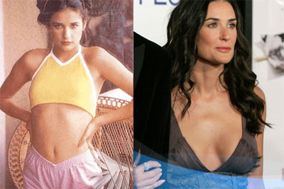 Demi Moore Plastic Surgery Before After Pictures