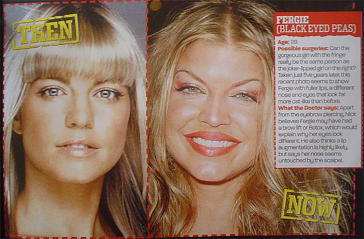 Fergie Plastic Surgery Before After Pictures