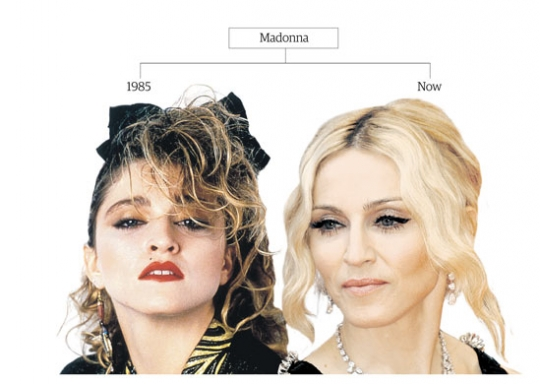 Madonna Plastic Surgery Before After Pictures