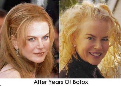 Nicole Kidman Plastic Surgery Before After Pictures